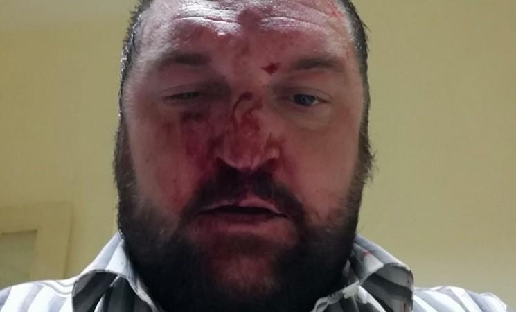 Talas naprednjačkog nasilja nastavljen nasrtajem na odbornika u Knjaževcu